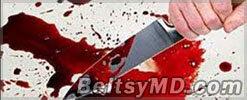 В Бельцах мужчина убил своего коллегу в разгар сабантуя