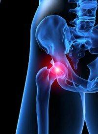 Опасны ли кальцинаты в тазогбедренном суставе большеберцово-малоберцовый сустав строение