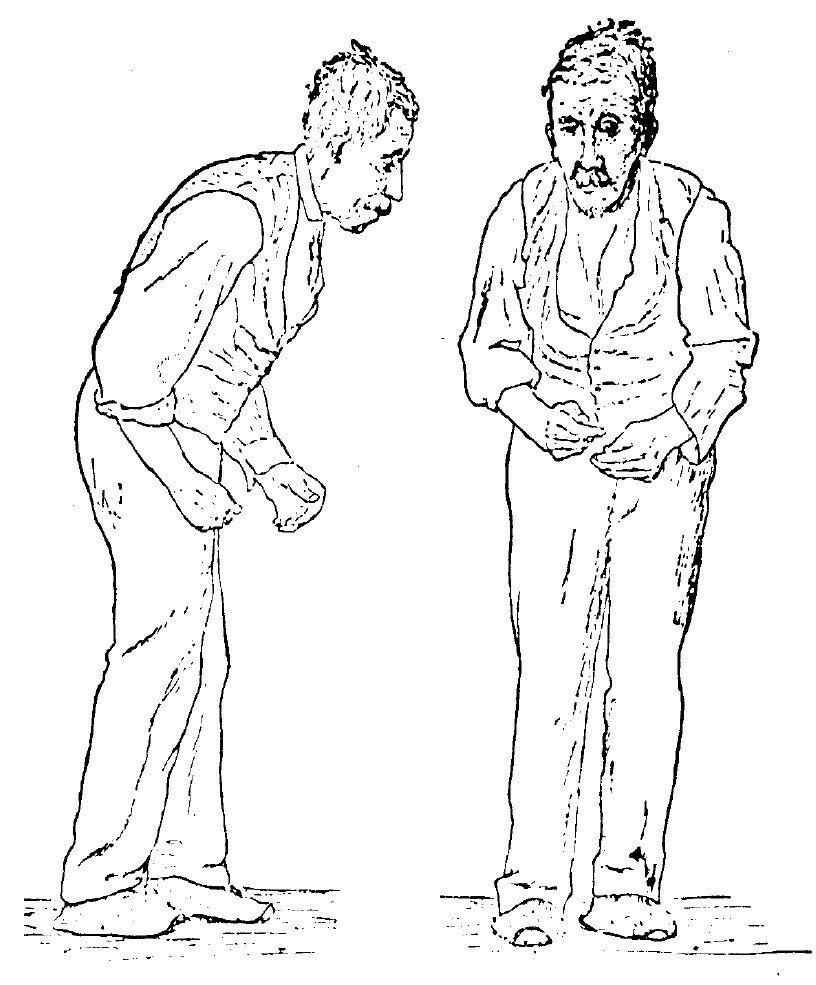 Sir_William_Richard_Gowers_Parkinson_Disease_sketch_1886.jpg