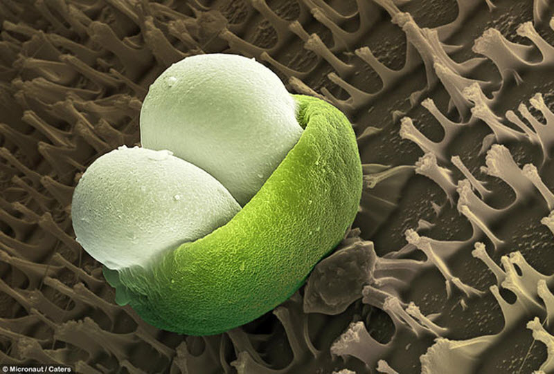 13. Сосновая пыльца. (MICRONAUT / CATERS NEWS)