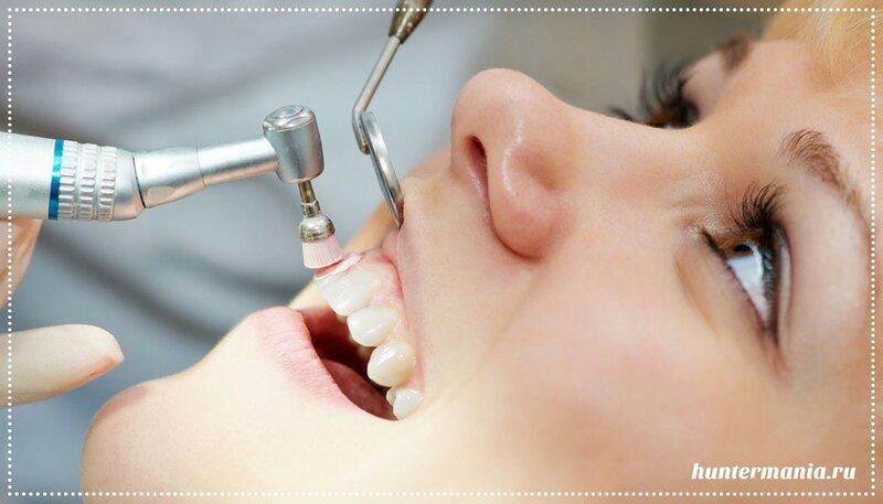 Зубной камень, лечение и профилактика