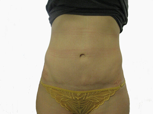 Среди советов, как увеличить грудь бесплатно без операции можно встретить такой, как применение различных кремов и