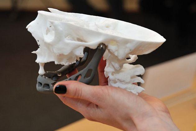 Для людей с артрогриппозом уже разработали экзоскелет, но он слишком тяжел и не подходит для маленьк