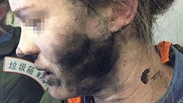 Пассажирка летевшего вАвстралию лайнера получила ожоги отвзорвавшихся наголове наушников