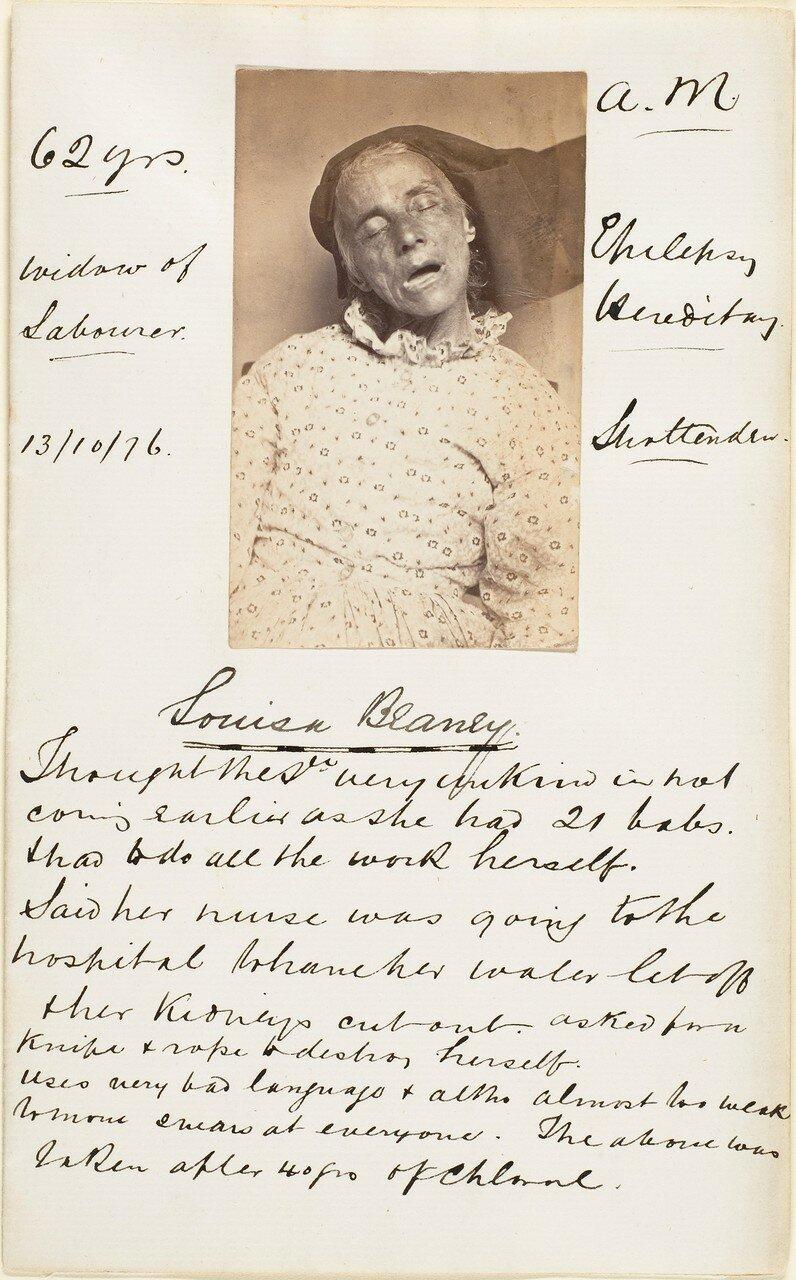 1876. Луиза Блейни