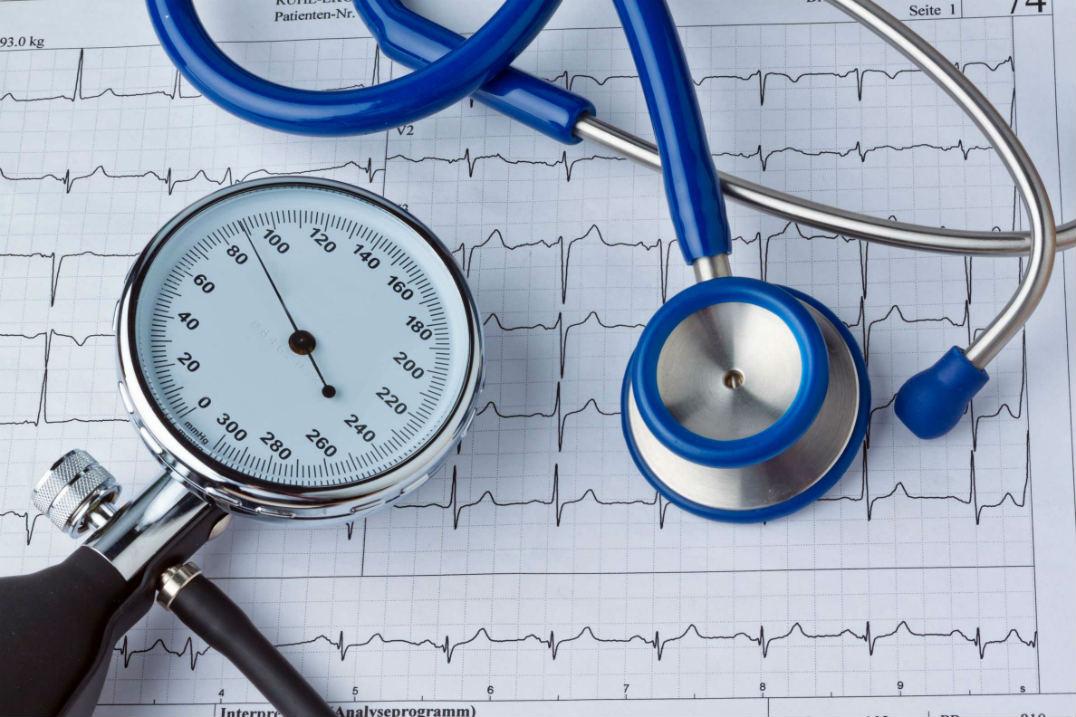 экг кардиоджет