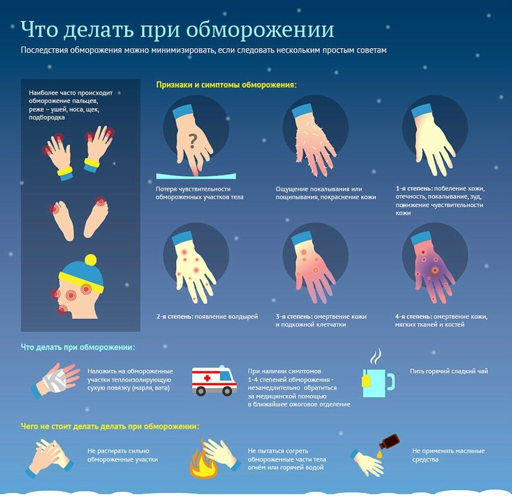 vetkovski_raion_winter_frost_0109.jpg