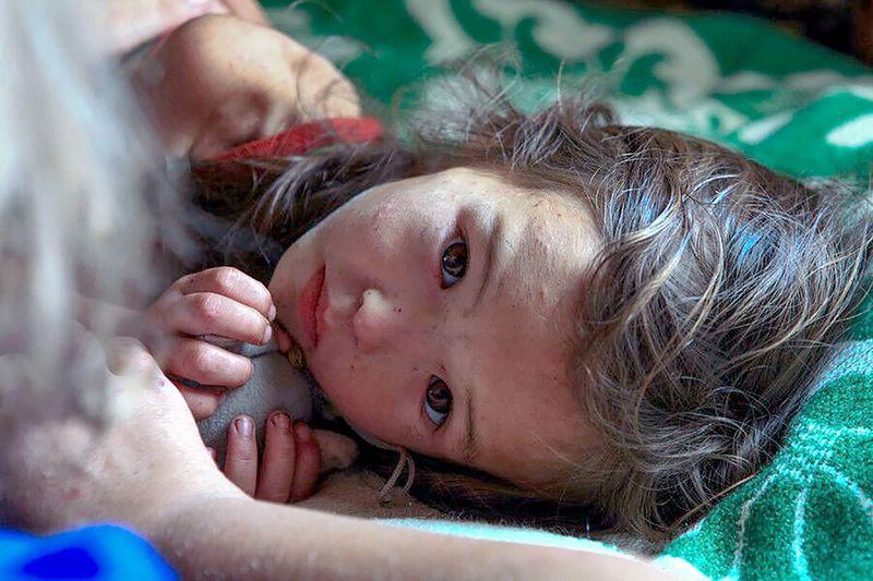 9. Спасшаяся Маленькая девочка, которой чудом удалось выжить после того, как она заблудилась и больш
