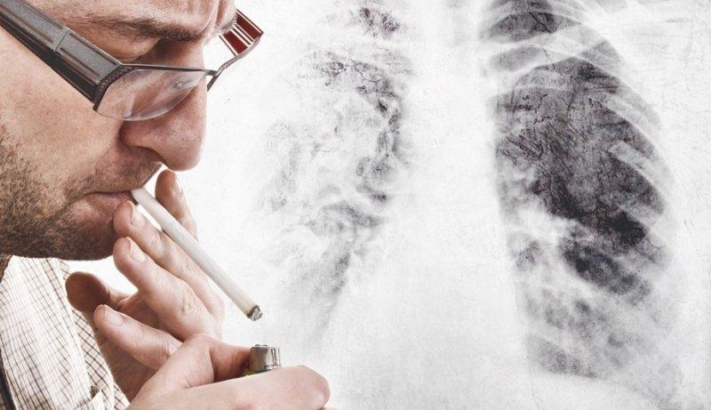 Ученые поведали, почему невсе курильщики гибнут отрака