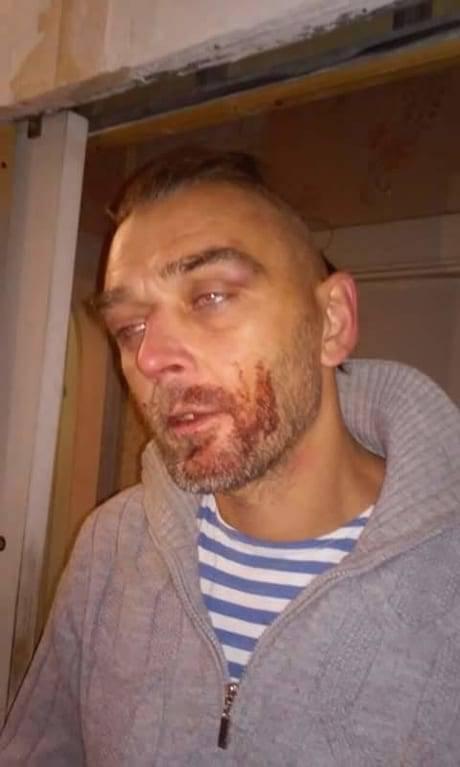 """""""Ты что здесь, слишком патриот?"""": В Николаеве копов обвинили в жестоком избиении ветерана АТО (фото)"""