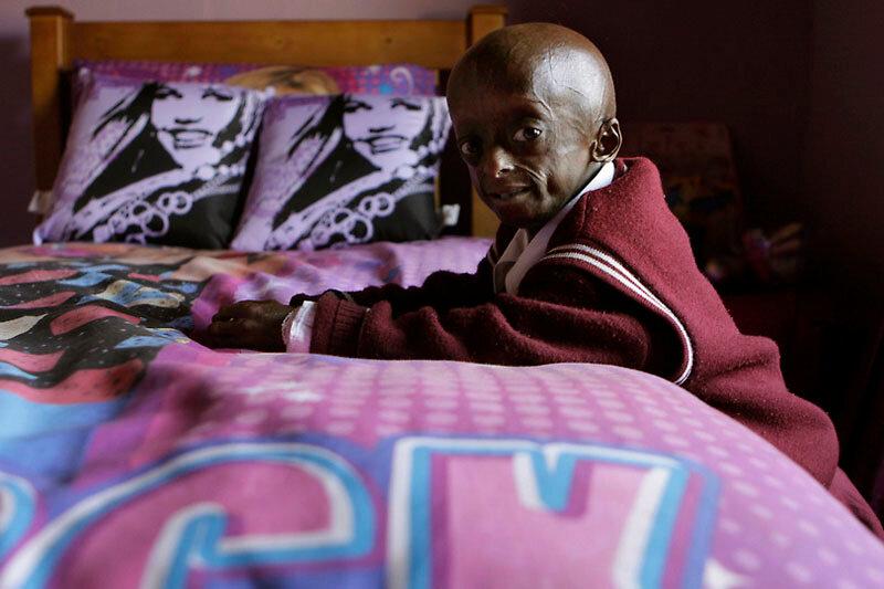 South Africa Progeria Girl