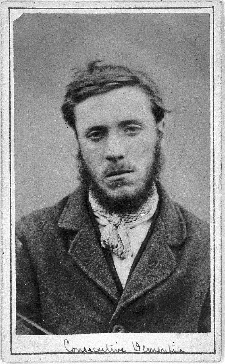 Человек, страдающий слабоумием.  1869