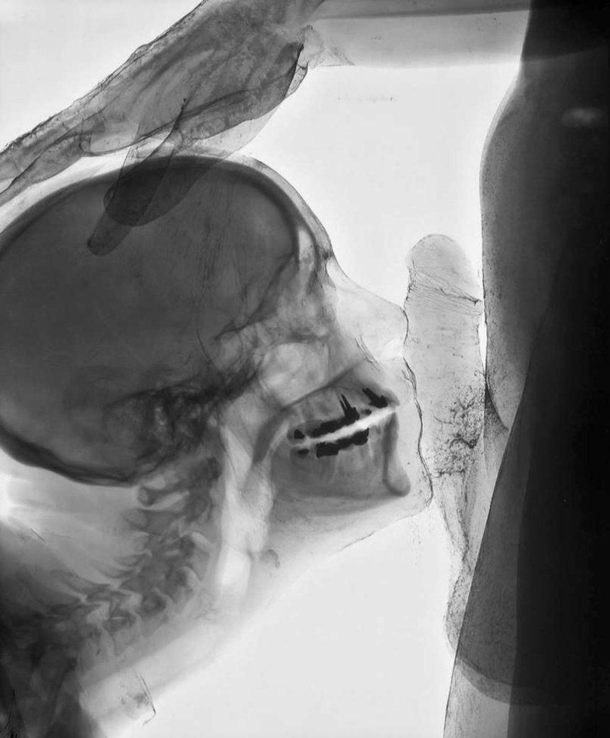 Порно японки секс через рентген видео бане блондиночку