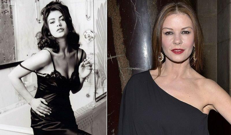 Фото как актрисы уродуют себя пластическими операциями, стремясь оставаться молодыми