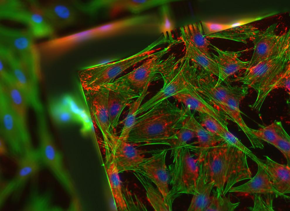 13. Подкожные клетки крысы. Снимок увеличен в 20 раз и сделан Рафаэлем Пеннесом из Лозанны, Швейцари