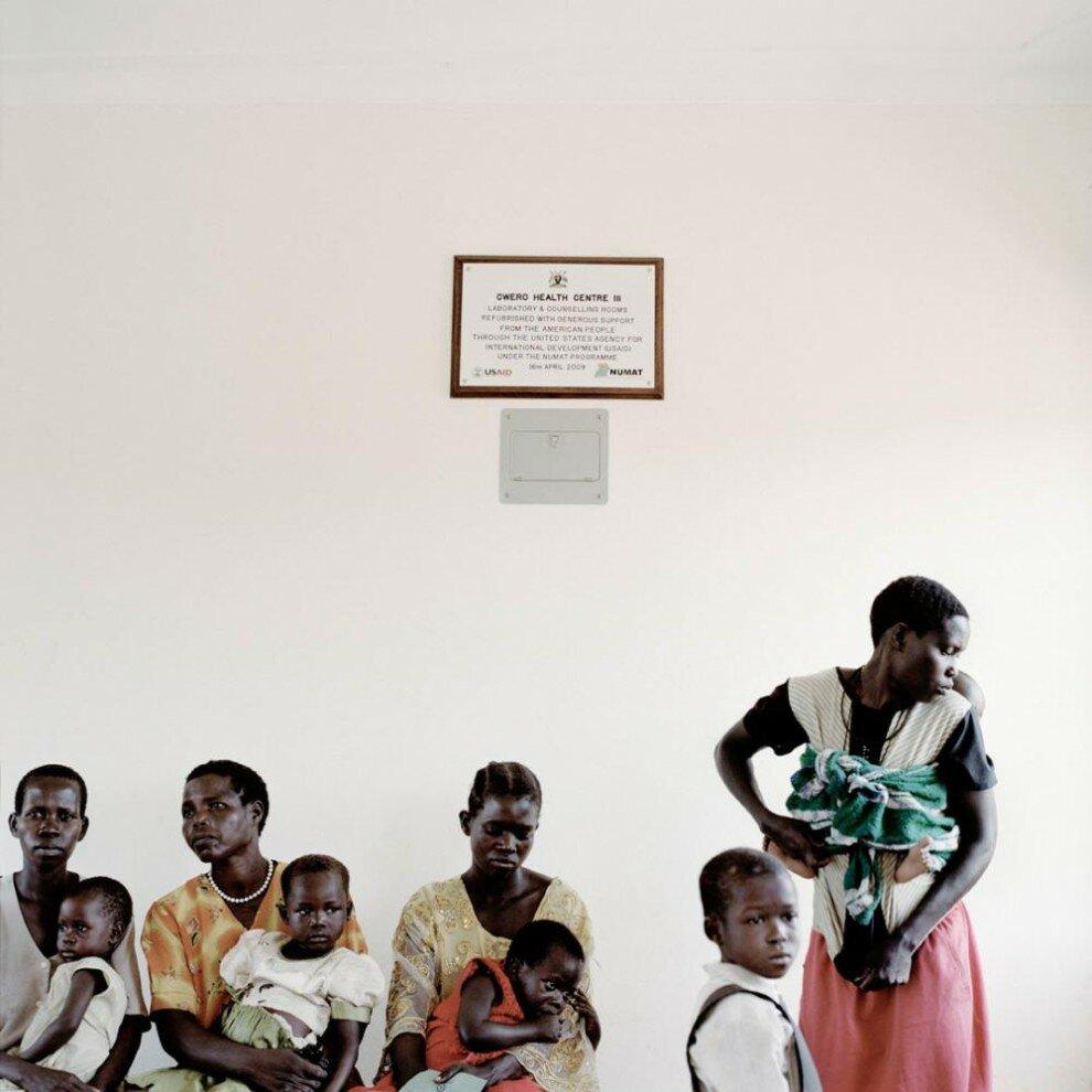 малярия у детей фото
