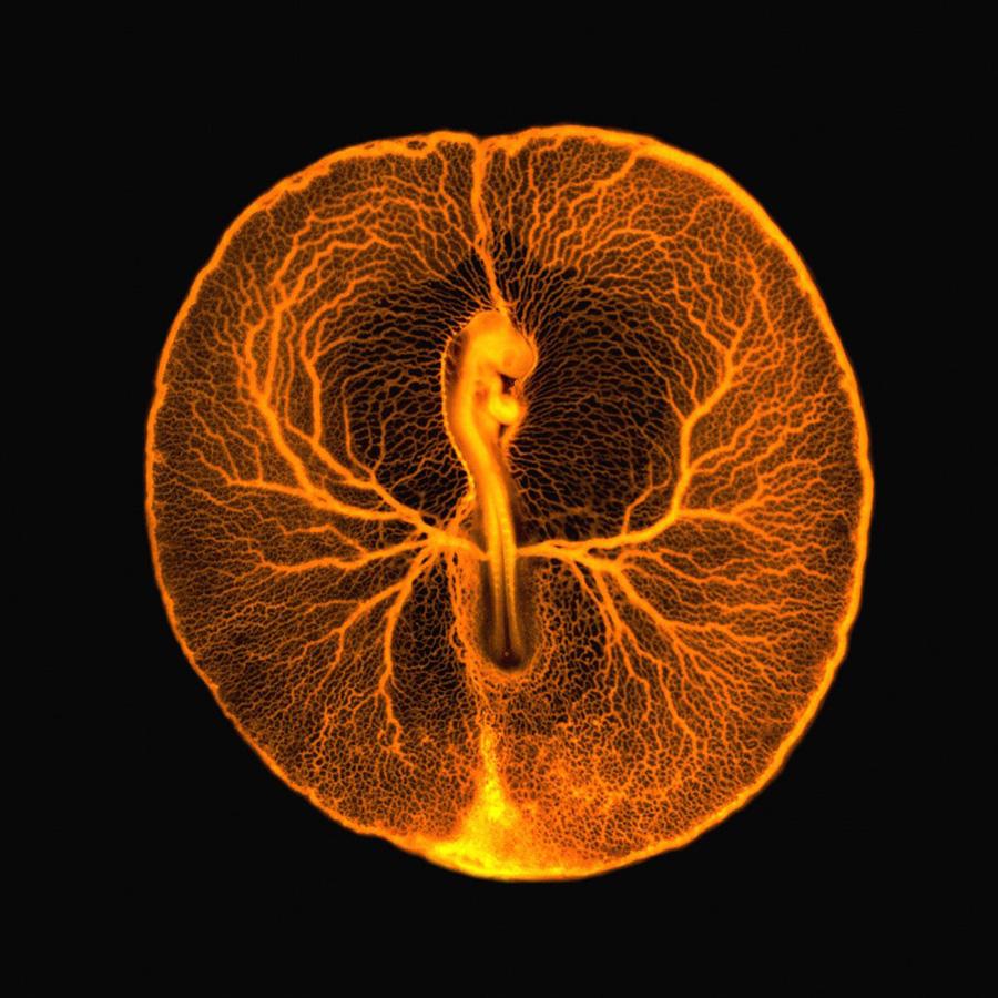 5. Флуоресцентная микрофотография сосудистой системы развивающегося эмбриона курицы через два дня по