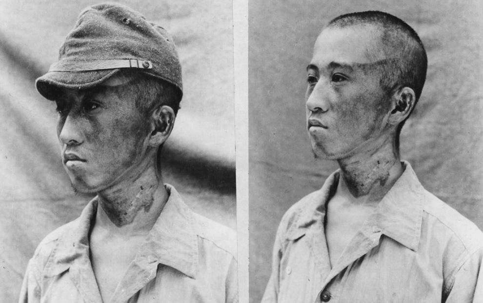 16. Этот пациент (снимок сделан японскими военными 3 октября 1945 года) находился примерно в 1981,2