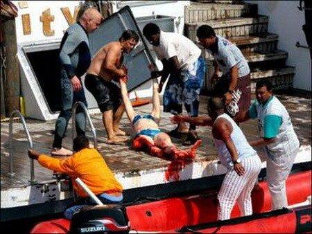 Выжившие после встречи с акулой: реальные фотосведетельства