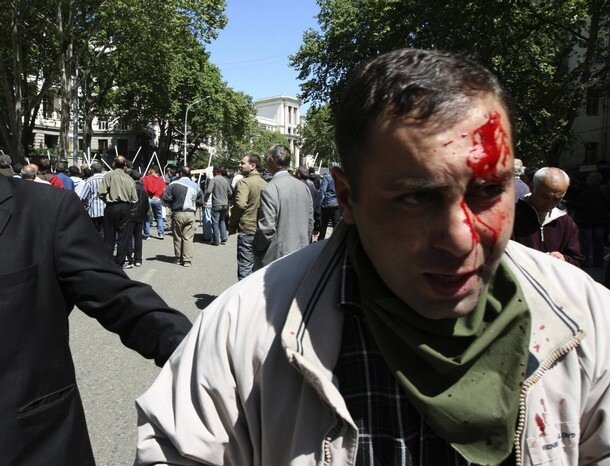 An injured man walks away after opposition supporters clashed with unidentified men in Tbilisi