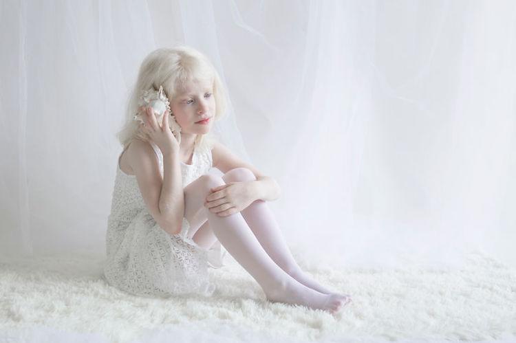 Хрупкая красота: удивительные портреты альбиносов, которые так не похожи на нас