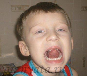 зарядка для горлышка