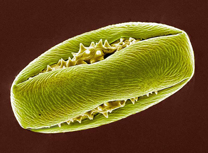 5. Пыльцевое зерно конского каштана. (STEVE GSCHMEISSNER / SCIENCE PHOTO LIBRARY / BARCROFT MEDIA)