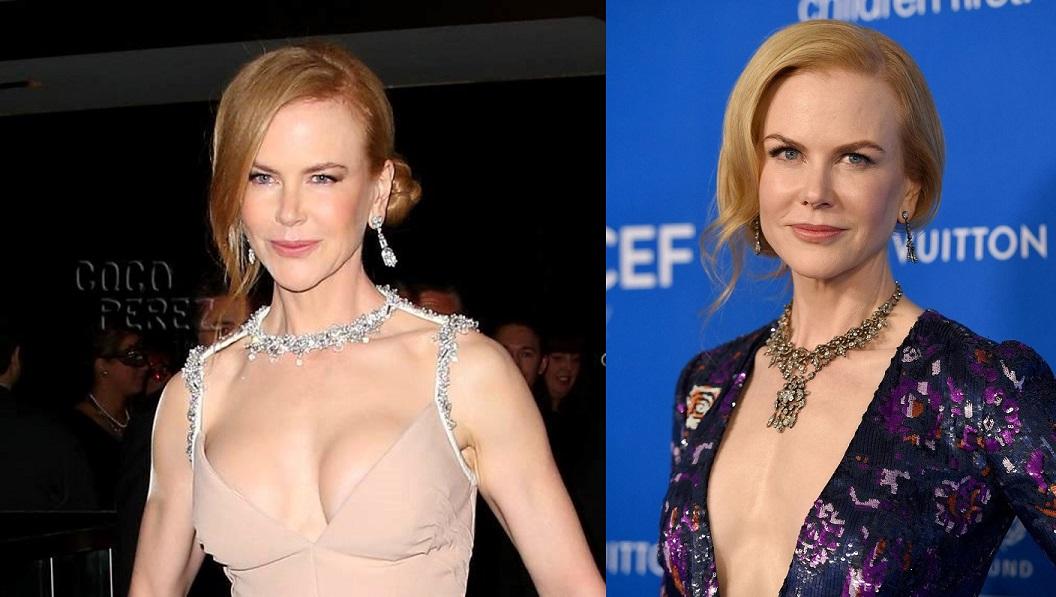 Знаменитая актриса, говорят, была очень довольна своим решением обогатить грудь. Николь взяла моду п