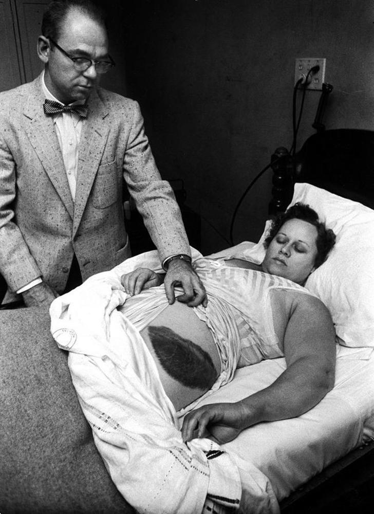 Энн Ходжес и её доктор, Муди Джейкобс, демонстрируют прессе синяк на теле Энн, оставленный осколком