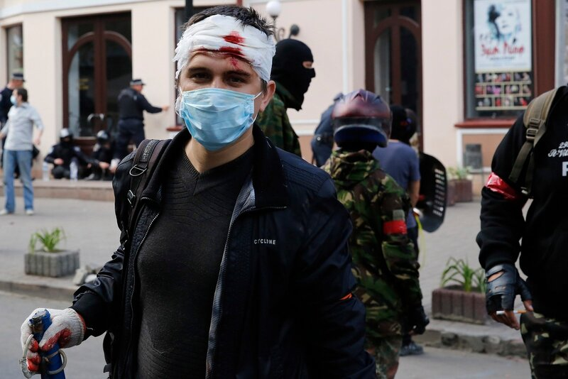 An injured pro-Russian activist looks on during clashes with supporters of the Kiev government in the streets of Odessa