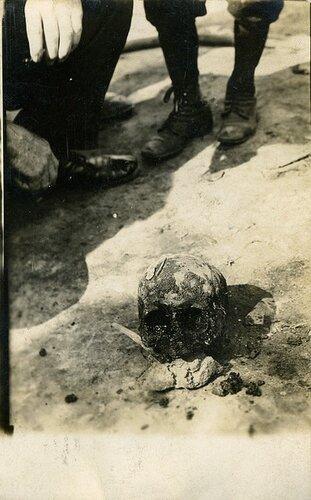 Голова жертвы