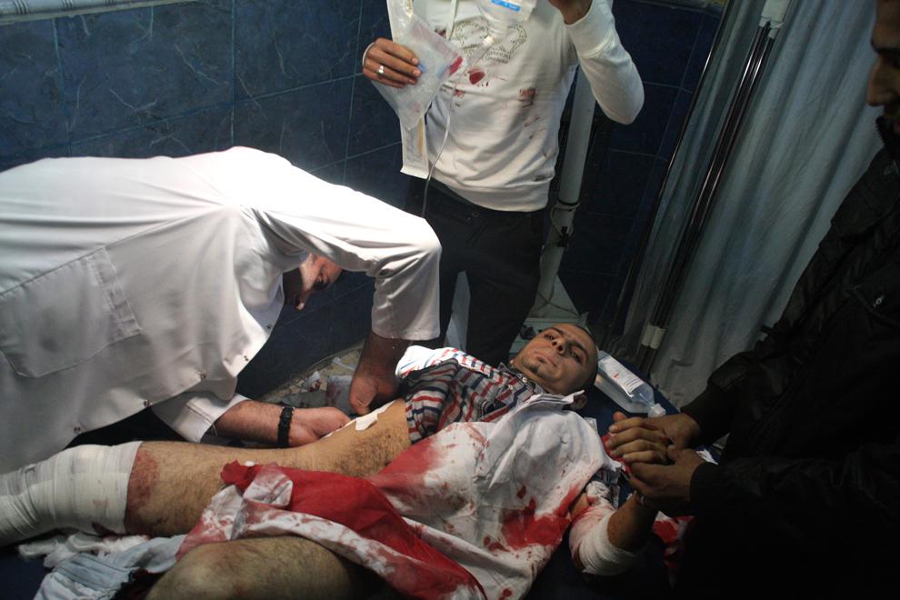 27. Раненому в результате теракта мужчине оказывают помощь в больнице Багдада. (Kareem Raheem/Reuter