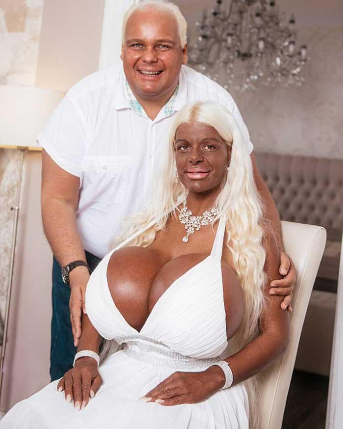 Мартина со своим бойфрендом Михаэлем, который тоже использует инъекции для придания коже загорелого