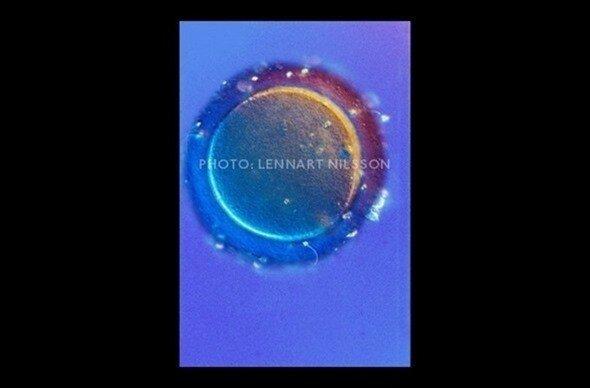 Самая главная тайна на Земле. Считать ли эмбрион человеком