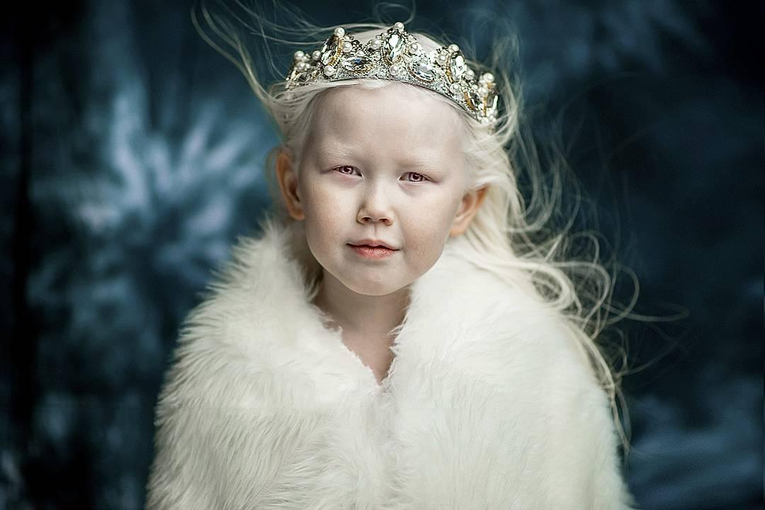 Малышка отличается от своих родителей и сестры с братиком, темноглазых якутов. Причина кроется в отс