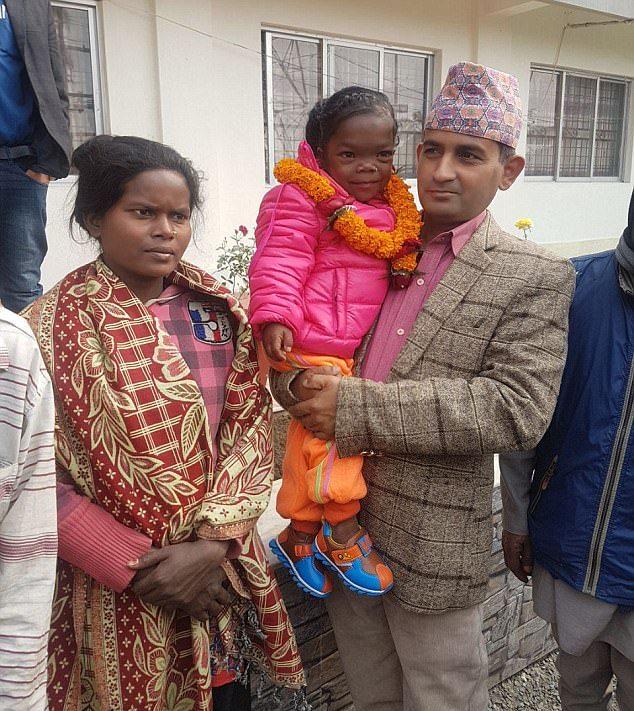 19-летняя девушка из Непала весит 13 кг при росте 88 сантиметров