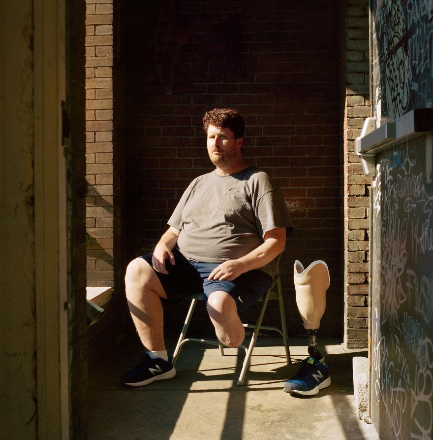 Мэтт Нил страдал от наркозависимости после выхода из тюрьмы. В его ноге развился сепсис, но из-за то