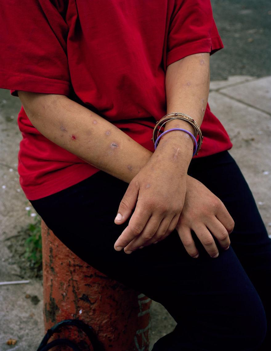 Мелисса стала заниматься проституцией сразу после того, как начала употреблять наркотики.
