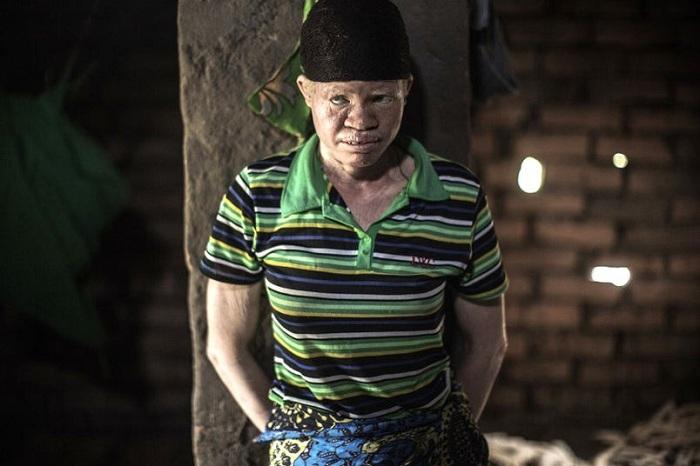 В одном из районов Малави, например, с начала года были убиты уже 6 человек. Многие альбиносы остают