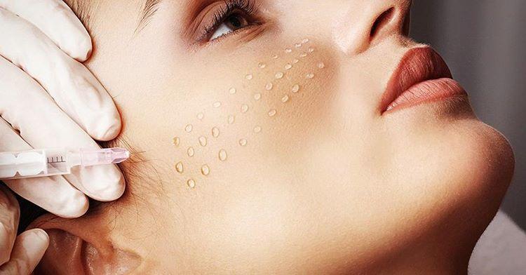 Уколы красоты для поддержания молодости и свежести кожи (1 фото)