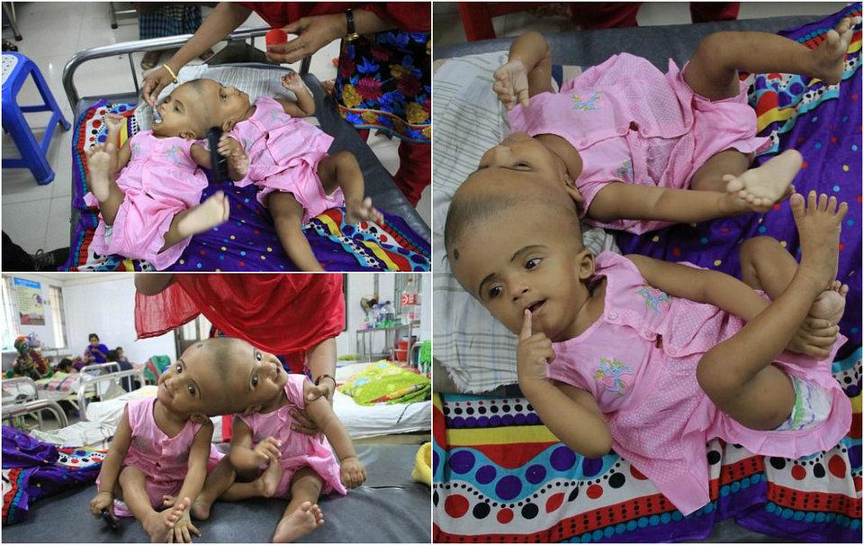 Хирурги готовятся разделить близнецов с одной на двоих головой