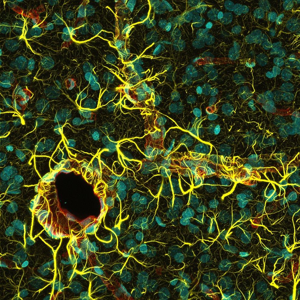 Поощрительная премия.  Клетки человеческого глаза  при конъюнктивите. (Фото Do