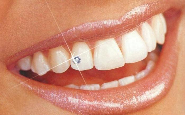 скайсы для зубов
