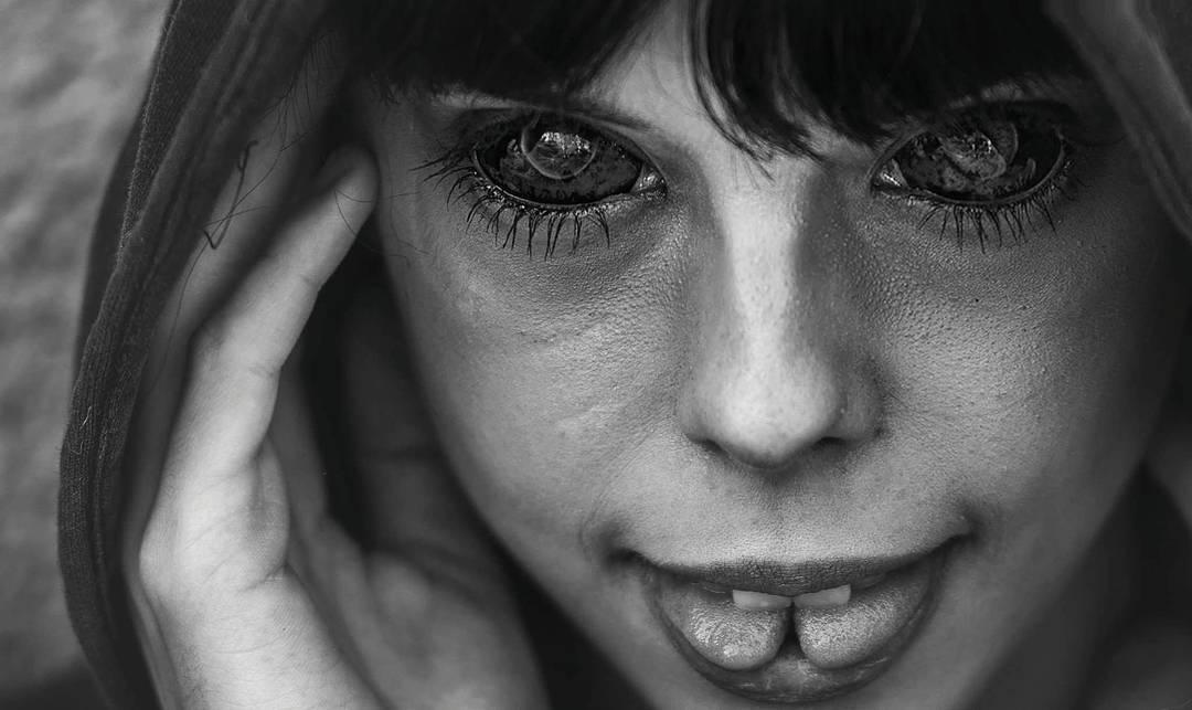 Финал истории с татуированными глазами (2 фото)