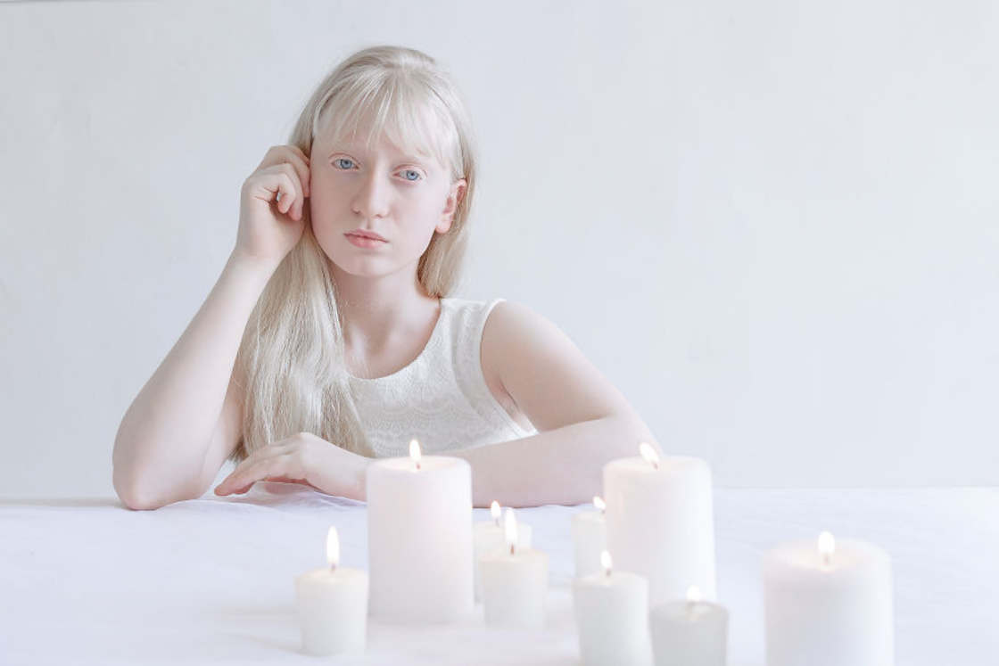 Porcelain Beauty - A photographer captures the beauty of albinos