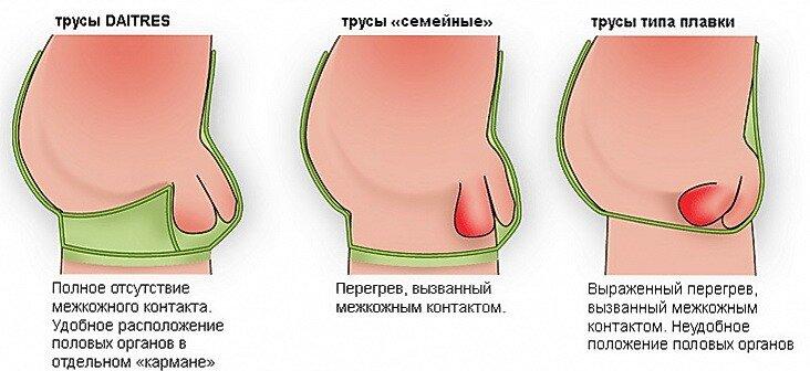 мужская эрекция фото