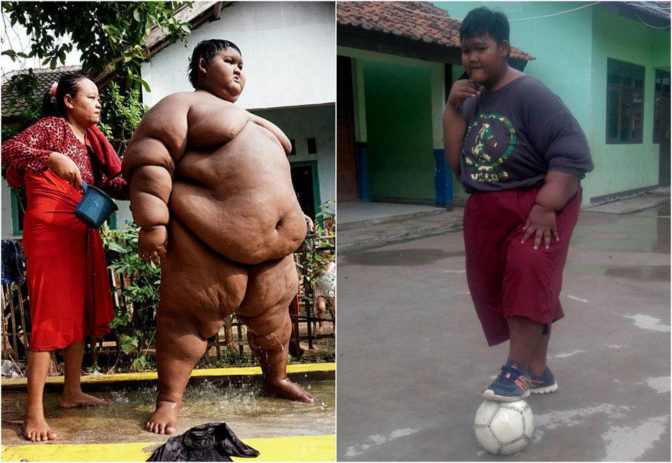 Самый толстый мальчик в мире похудел на 76 кг и живет полноценной жизнью