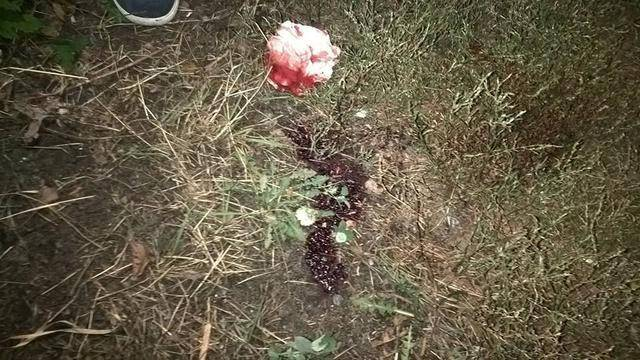 Драка подростков переросла в перестрелку в Киевской области: один из парней в реанимации. ФОТО