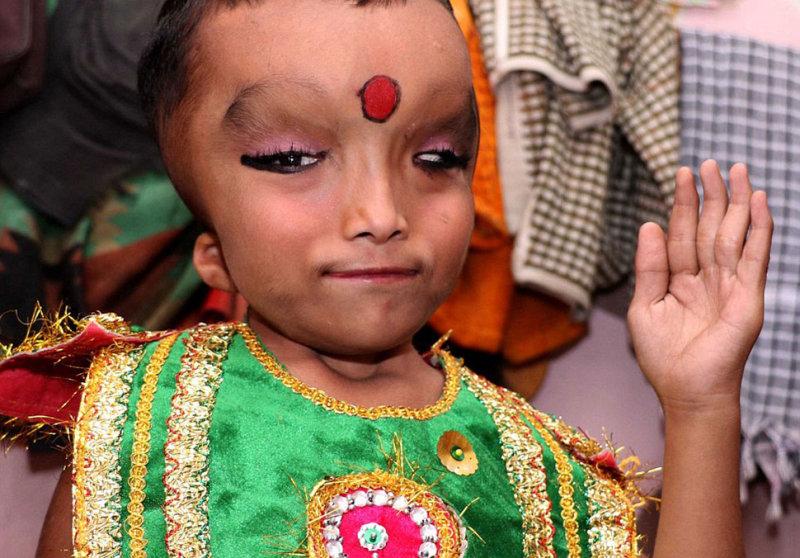 Праншу из деревни Джаландхар в штате Пенджаб родился с таким дефектом и не может ходить. Односельчан