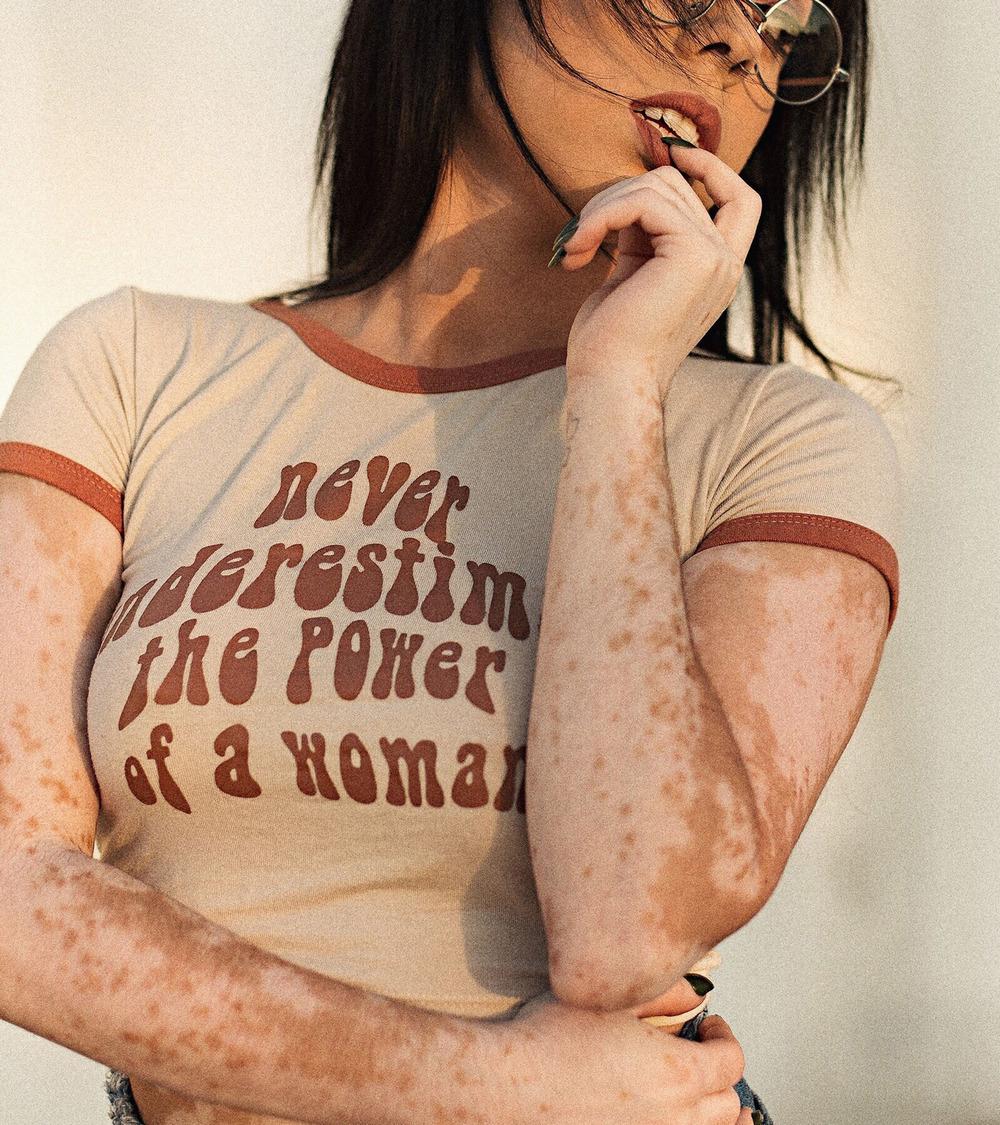 Девушка превращает пятна на коже в произведения искусства